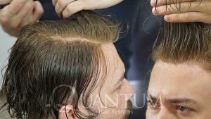 quantum sistem ile en doğal protez saç uygulaması